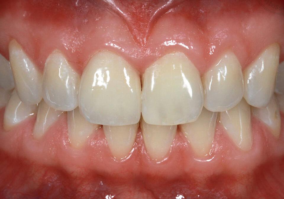 exzellente dentale ästhetik